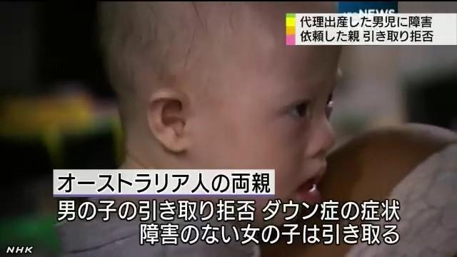 代理出産で障害児の引き取り